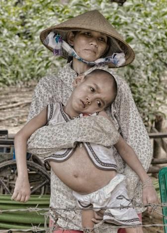 Madre con hijo enfermo. Autor: Juan González