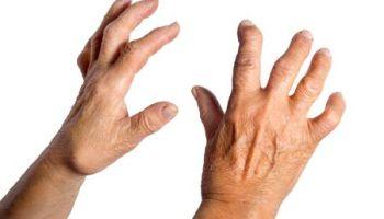 la artritis reumatoide