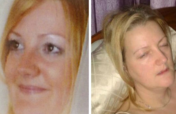 Laura Brown pictured before and after her diagnosis with Lyme disease