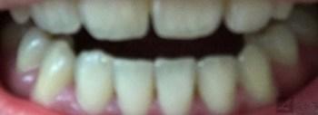 実際にセルフホワイトニングしてみました!自宅で簡単に歯を白くする方法