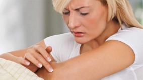 Nuolatinis stresas gali prišaukti žvynelinę