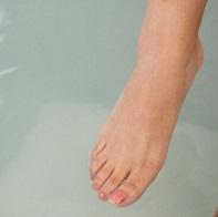 しもやけで足の指のかゆみや痛い状態を治すにはどうしたらよいか?