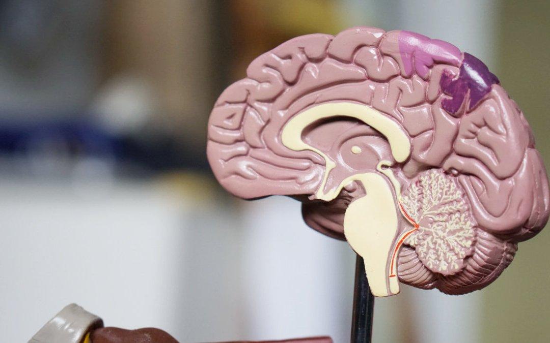 改善巴金森氏症的認知能力?10 週地中海飲食研究