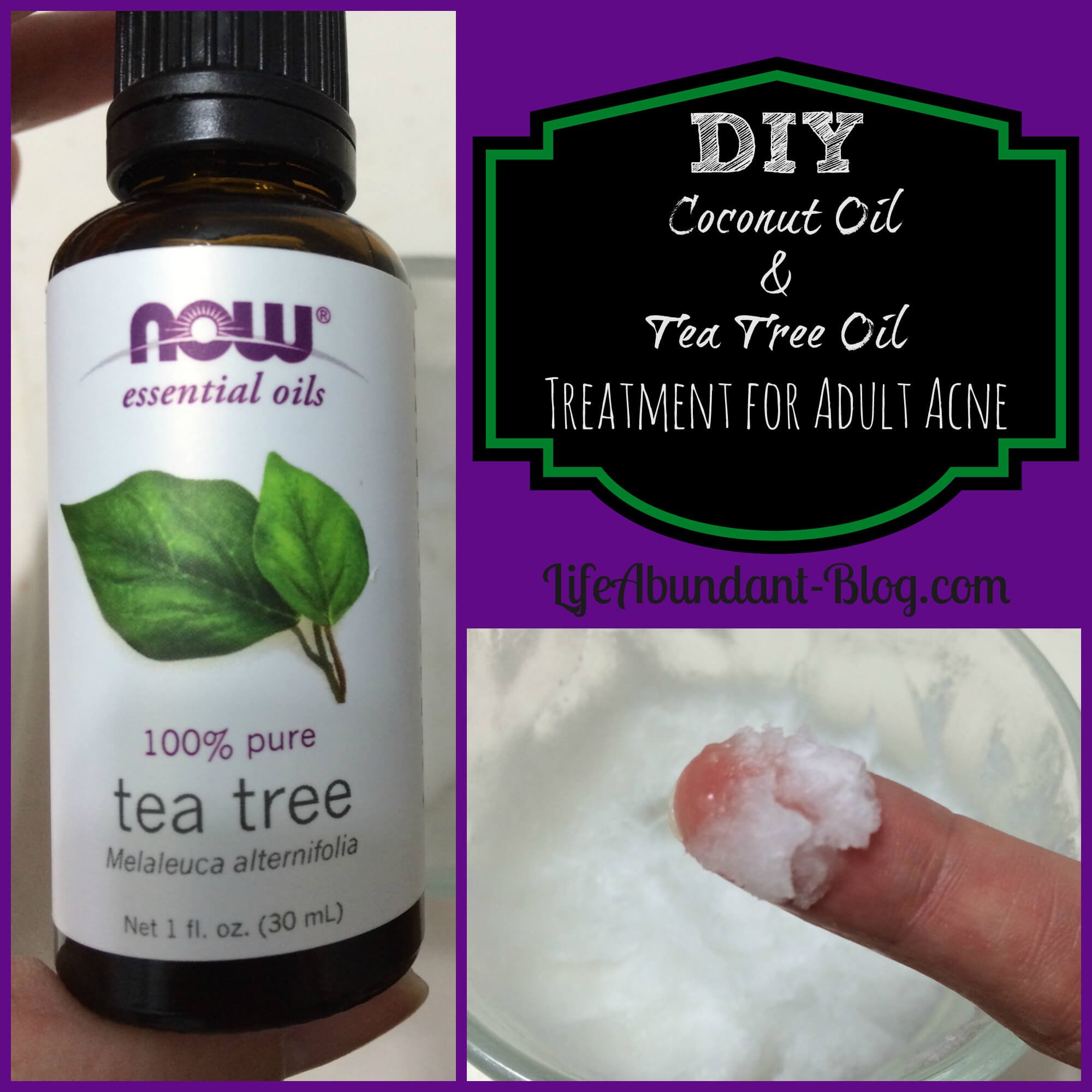 diy coconut oil + tea tree oil treatment for adult acne
