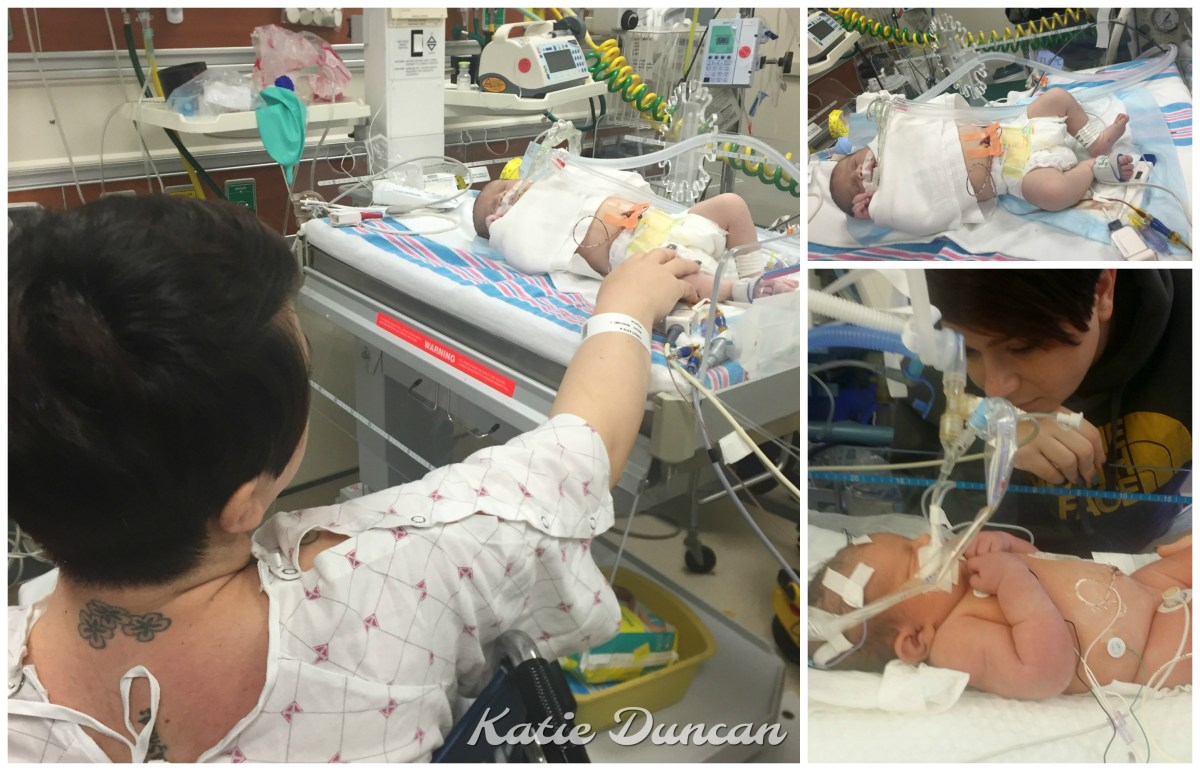 Katie's Missed-Diagnosis Vasa Previa Miracle: The Traumatic Delivery of Baby Kenleigh