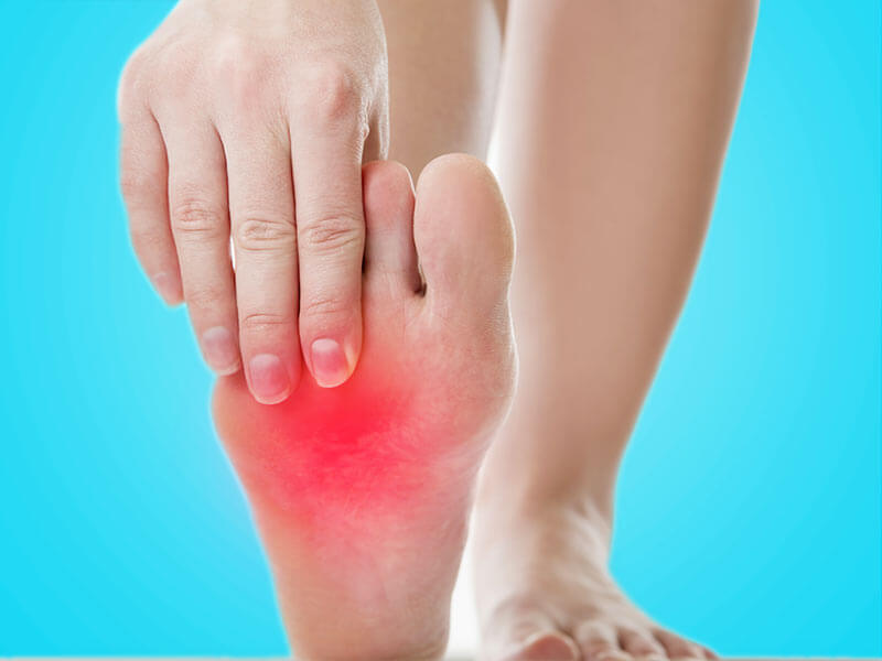 How to get rid of the burning sensation in the feet ...