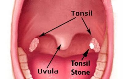 radang tonsil