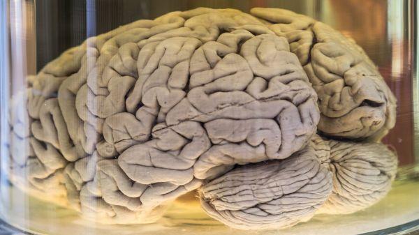 Real Human Brain in Jar