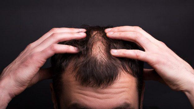 23種脫髮的原因,缺乏蛋白質、突然暴瘦⋯⋯全在這裡!