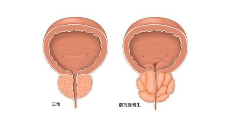 注意!排尿困難,夜尿頻繁,可能是前列腺肥大‼