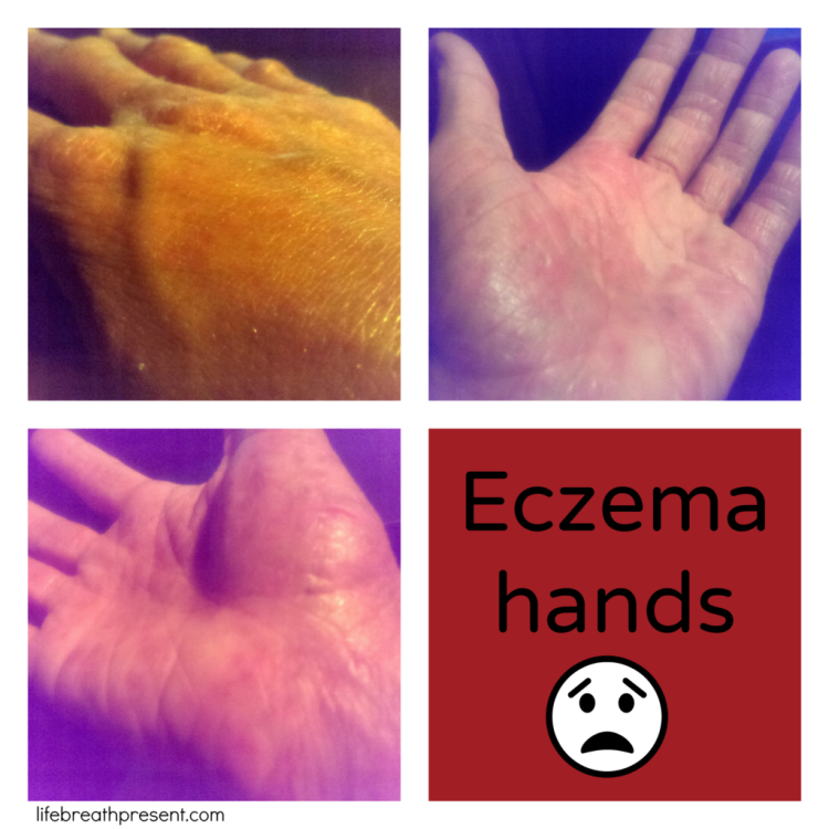 eczema, hands, dry, cracked, peeling, pain, breakout, wellness