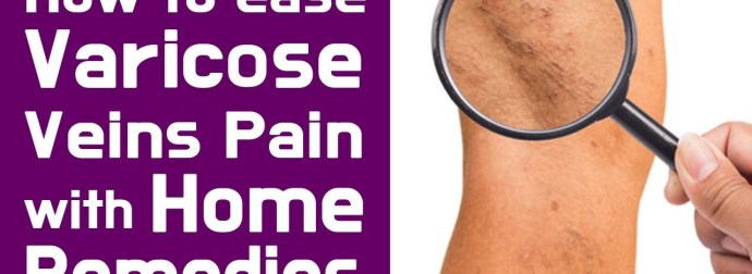 How to ease Varicose veins pain with Home Remedies