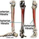 Tibialis posterior syndrome