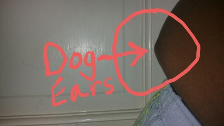 Post Diep Flap Brest cancer surgery dog ears