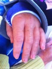 Very swollen fingers
