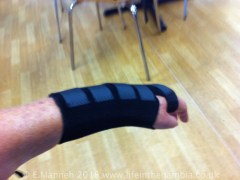 I had to wear a splint for several weeks