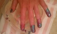 Attempt at Having Cute Toenails and Fingernails #1 = Fail ...
