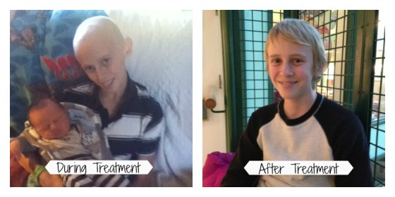 Joe During and After Treatment