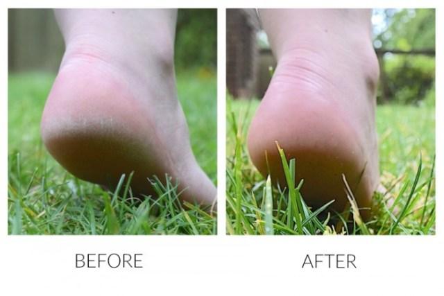 Get Feet Summer Ready - Before & After