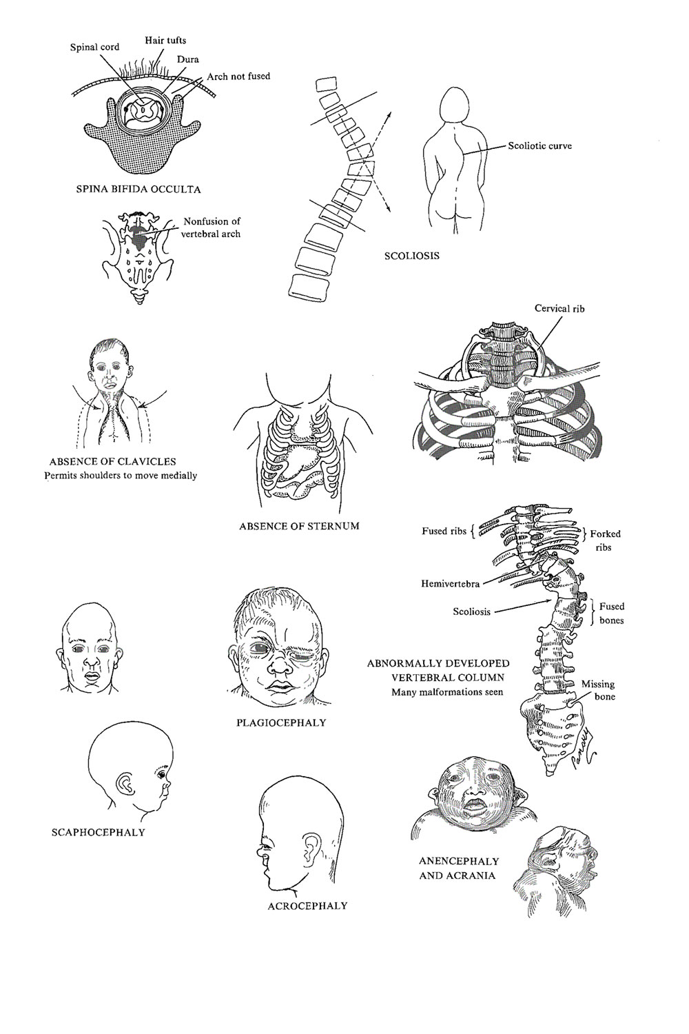Chapter 68. Congenital Malformations of The Skeletal