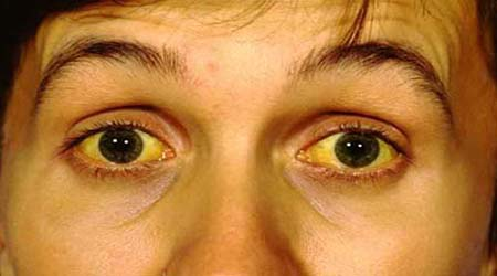 Jaundice Causes Symptoms And Treatments Life Mind And Body
