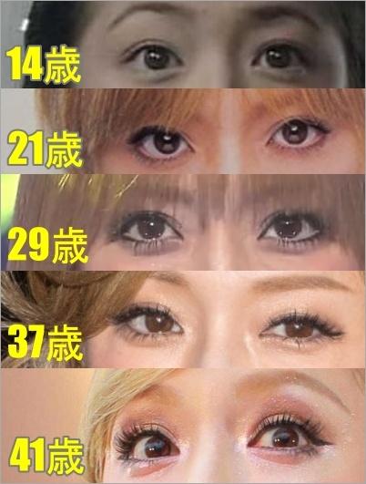 浜崎あゆみ 顔の変化 目