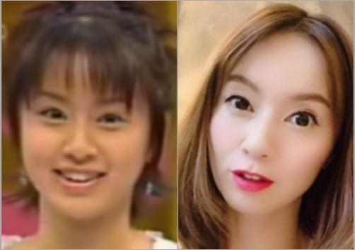 鈴木亜美の顔の変化