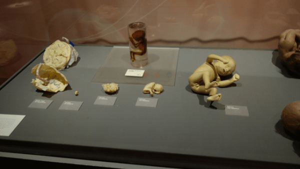 Real Bodies at Bally's - The exhibit uses REAL human specimens to explore the inner workings of the human body to explore elements of breathing, hunger, the rhythm of the heart, and other body functions. There are more than 20 preserved human bodies and more than 200 anatomical specimens.