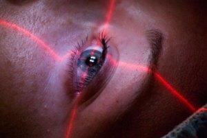 A lady have laser eye surgeyry