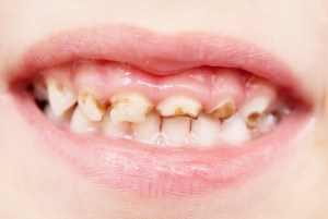 Top Dentist in Brampton, Brampton Dental offices, Kid With Bad Teeth, Child's Dental Care, Importance Of Dental Cleanings and Check Up For Kids, Dental Health, Dental Info, Dental Implants Brampton,