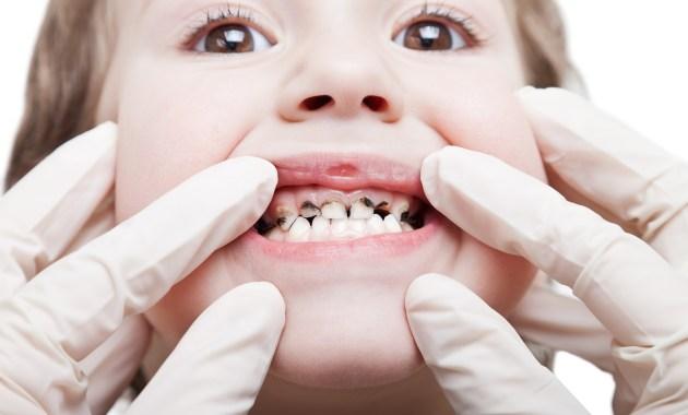 Healthy Smiles Program, Child Dental Neglect, Child Cavities, Dental Caries in Children, Children in Need Of Dental Treatment,