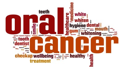 Oral Cancer, Dental Exams, Brampton Dentists, Regular Dental Check Ups, Top Dentists in Brampton, Brampton Dental offices, Caledon Dentists, Best Dentist in Caledon,