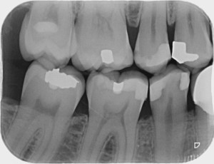 Brampton Periodontists, Brampton Dentists, Best Dentist in Caledon, Dental Health, Top Dentists in Brampton, The Importance Of Dental x-rays, Peterborough Periodontists,