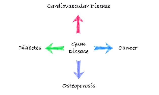 Cardiovascular Disease, Cancer, Osteoporosis, Diabetes, Gum Disease, Peterborough Periodontist, Peterborough Dentist,