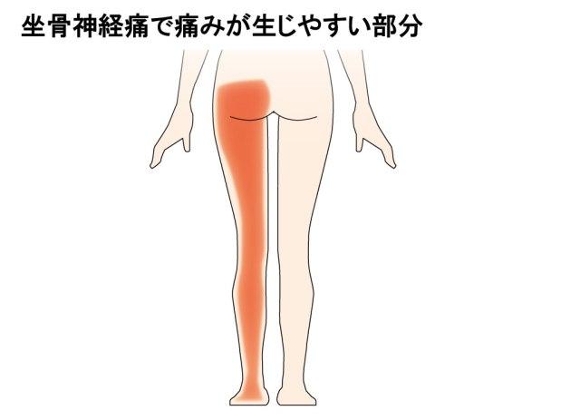【かかとが痛い】坐骨神経痛が原因で痛みを発症する場所と対処法