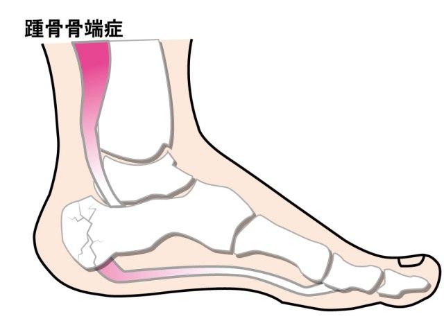 【かかとが痛い】踵骨骨端症が発症する場所と対処法