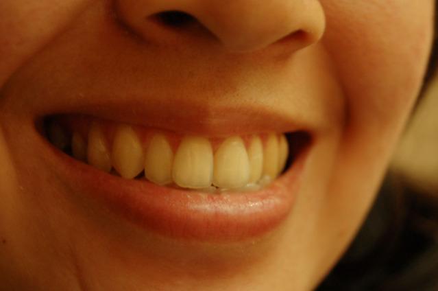 知覚過敏の6つ原因と症状緩和のための歯磨き粉の選び方