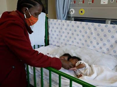 Conjoined twins successfully separated in South Africa  (photos)