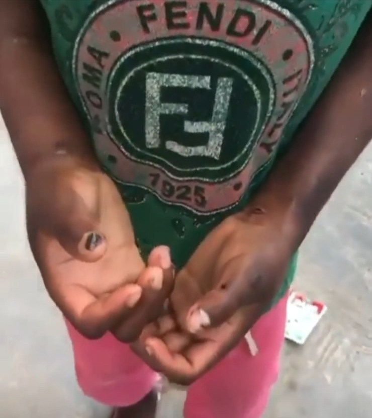 Boy rescued after being subjected to horrific abuse during his one-month stay with his madam in Lagos (video)