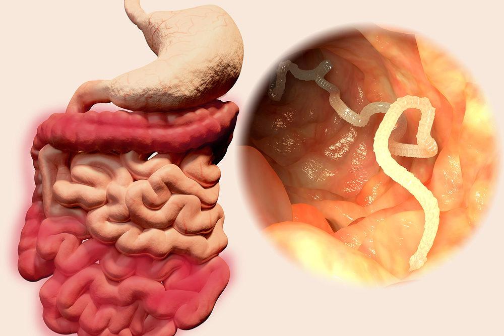 आंतों में कीड़े