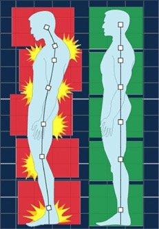 diagram of proper and poor posture