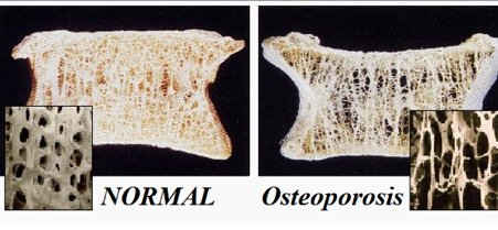 cross-section image of normal and osteoporosis bones