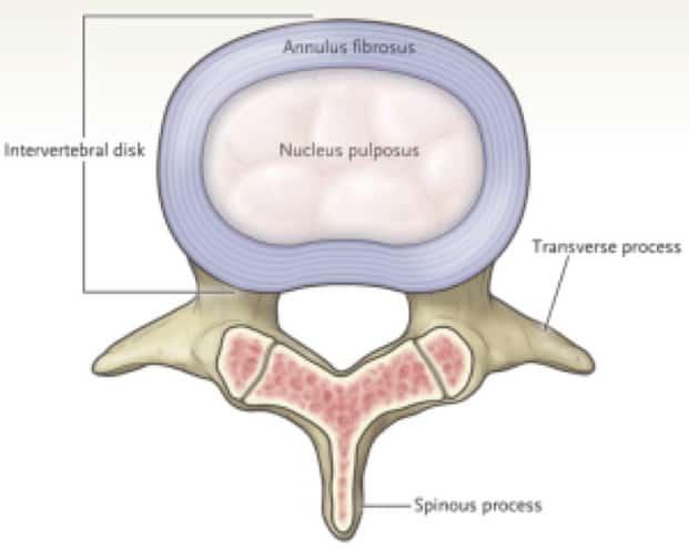 Drawing of lumbar disc