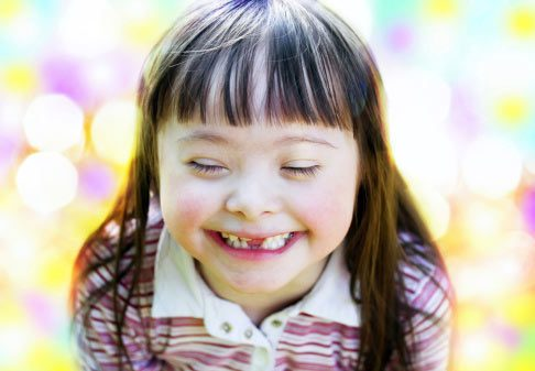 Smiling little girl with Downs Syndrome