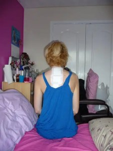 Scoliosis Surgery