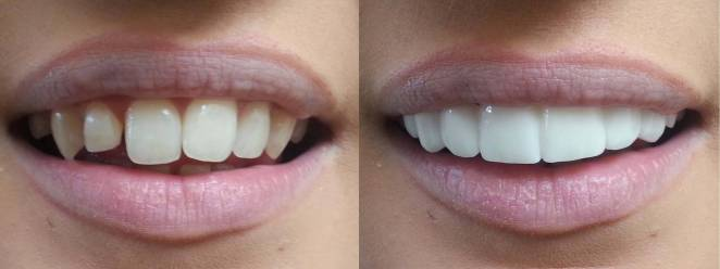 Lifexpe LXP Life Experience at the dentist clip on veneers teeth tooth bleaching shades before and afters