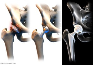 The top left diseased hip is exactly what mine looked like. Ouch!