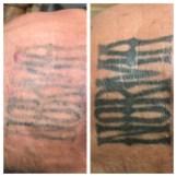 Tattoo Removal 6 treatments