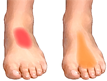 Pain on Top of Foot Sharp near Toes Ankle after ...