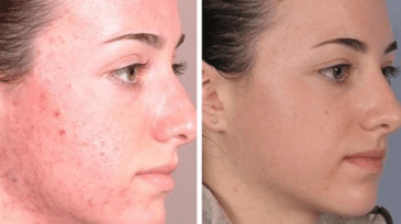 Best Chemical Peel for Acne Scars Before and After Dark ...